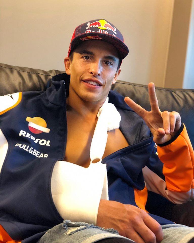 El piloto español Marc Márquez fue operado con éxito del brazo derecho